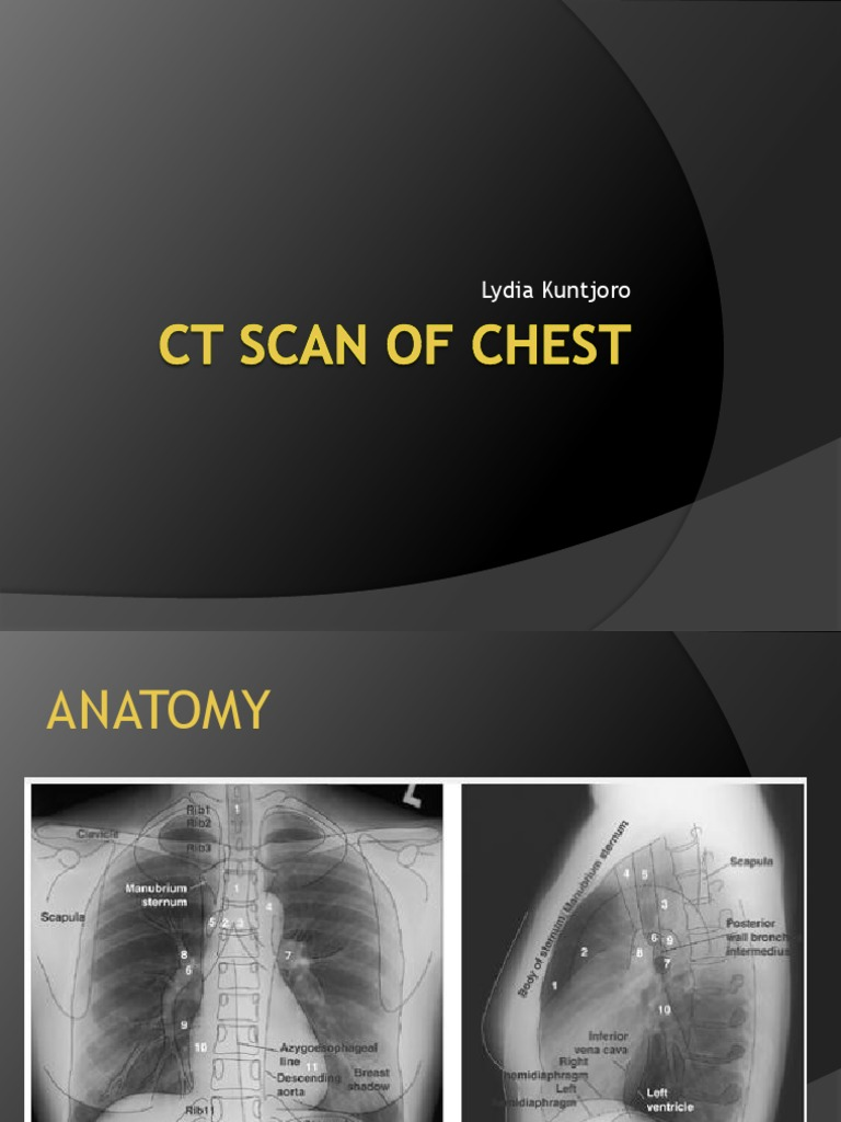 Enchanting Chest Ct Scan Anatomy Photo - Human Anatomy Images ...