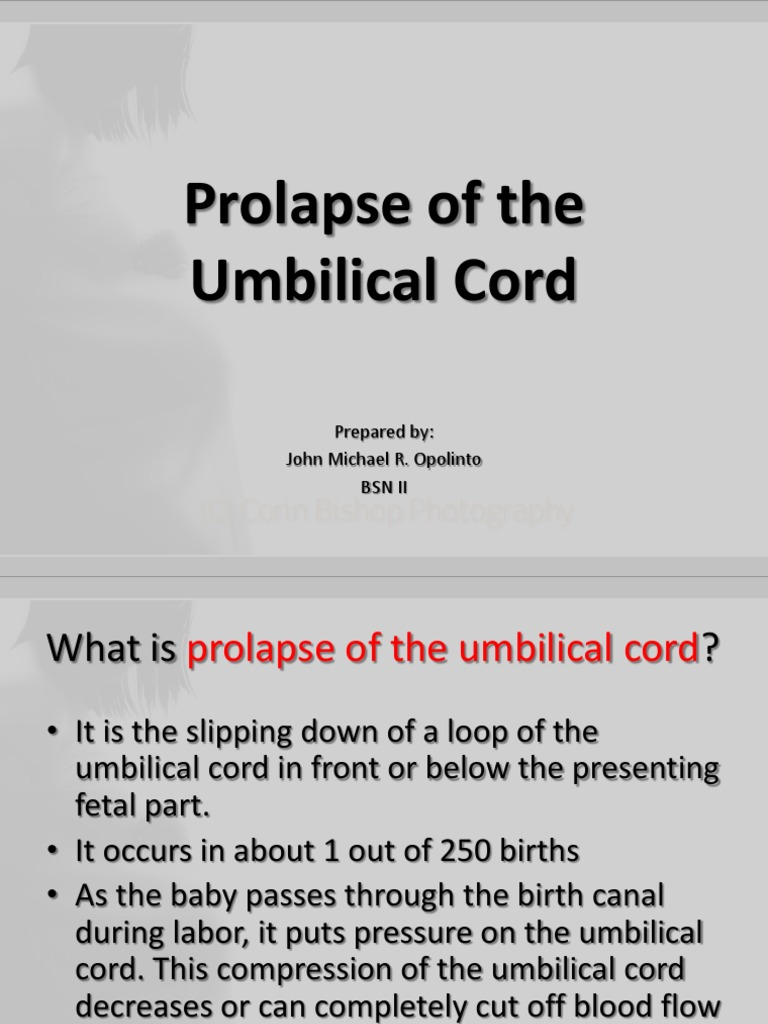 umbilical cord thesis proposal The objective of the study is to identify the best available evidence regarding newborn umbilical cord  proposal a new effective  thesis zupan j, garner p.