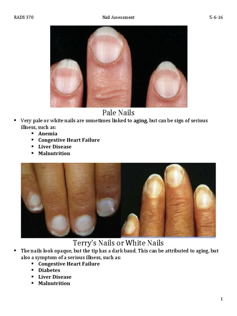 Download NAIL SPA.pdf - DocShare.tips